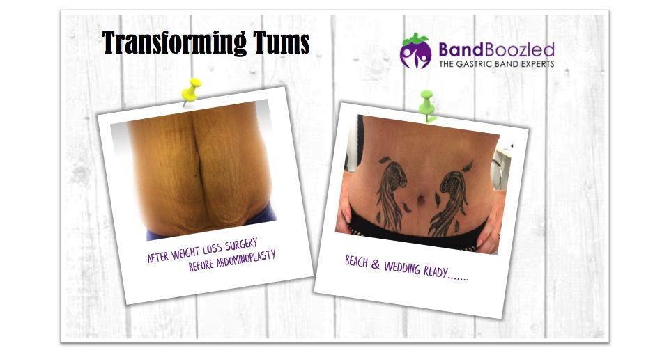 Transformation Tum Tuesday