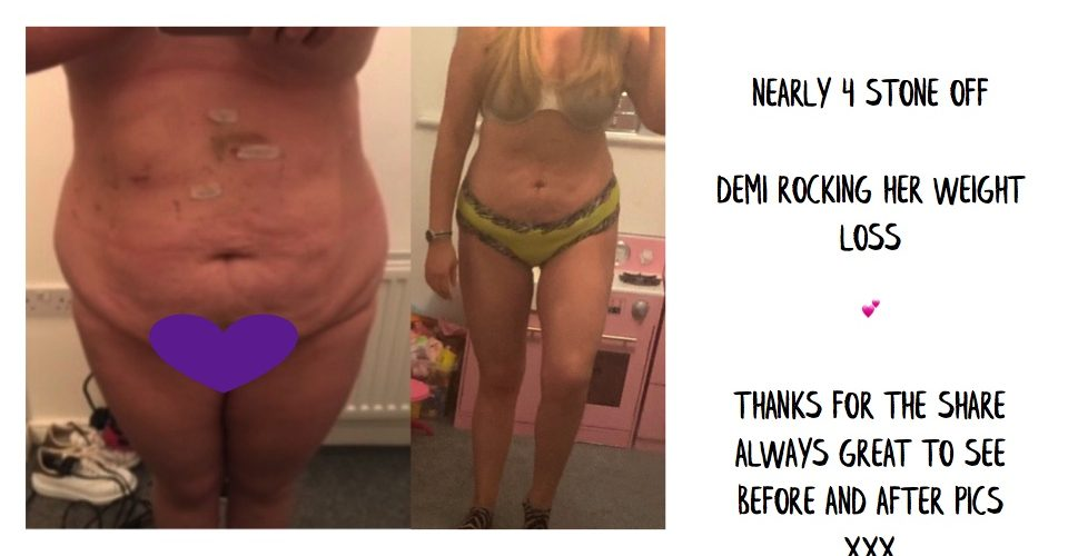 Demi – Before & After